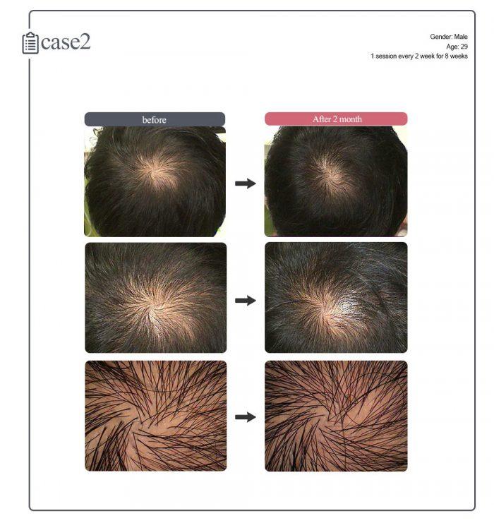 dr.cyj hair filler